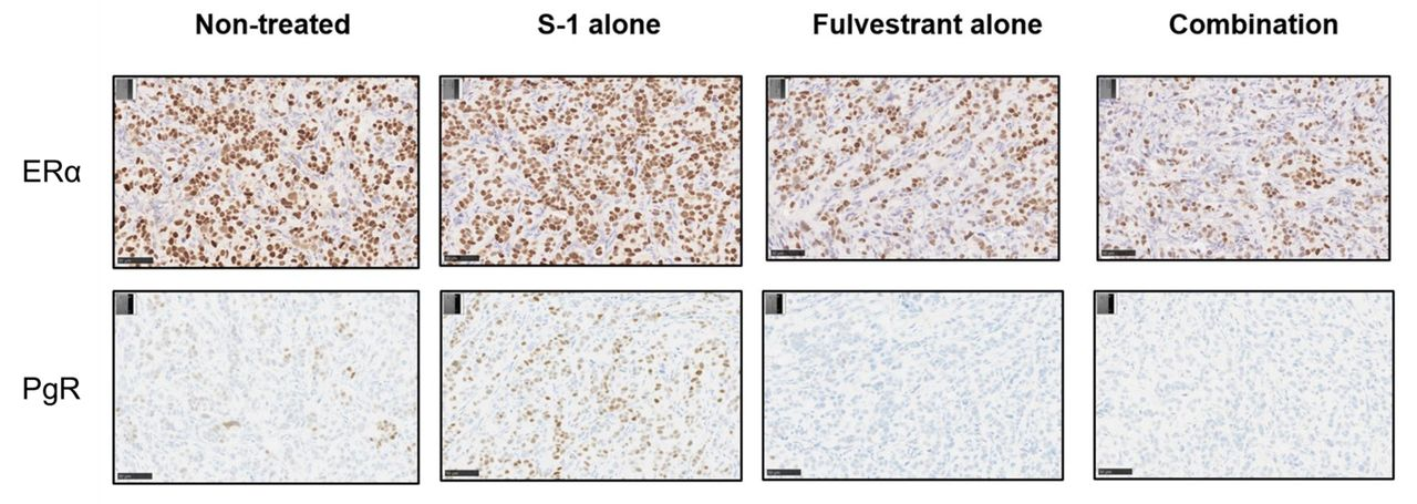 Frontiers | Hepatocyte Nuclear Factor 3β Plays a