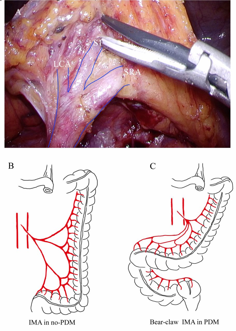 Persistent Descending Mesocolon As A Key Risk Factor In Laparoscopic Colorectal Cancer Surgery