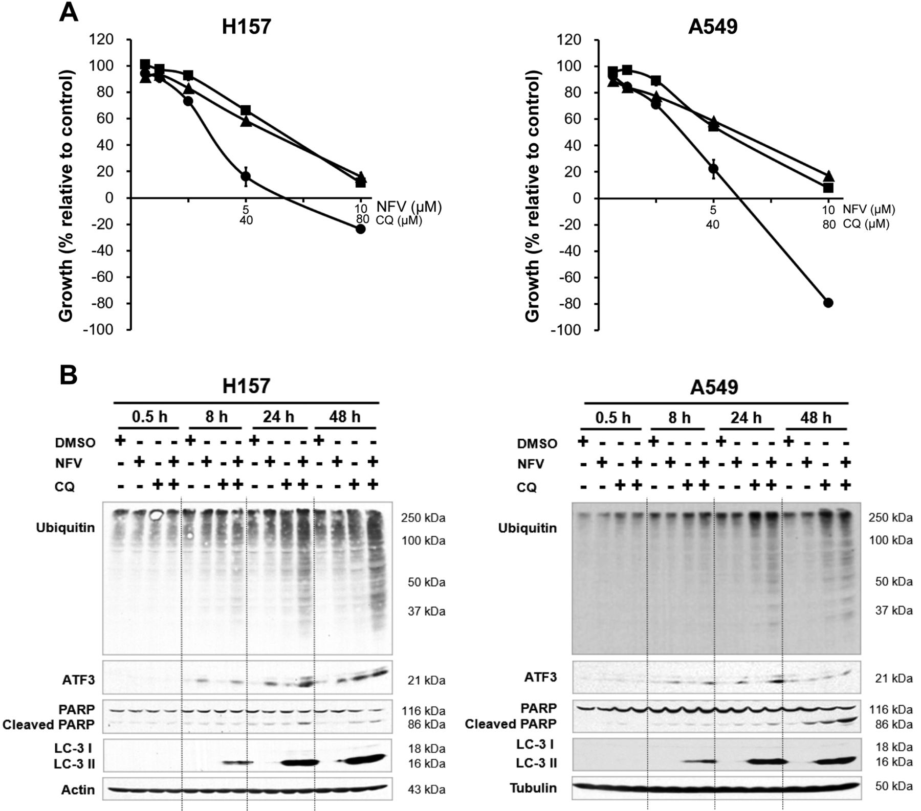 B5, a thioredoxin reductase inhibitor, induces apoptosis